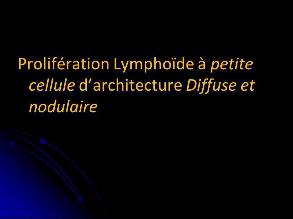 les diagnostics évoqués sont: Lymphome à cellules du manteau Lymphome à cellules du manteau Lymphome de la zone marginale Lymphome de la zone marginale Lymphome folliculaire diffus Lymphome folliculaire diffus