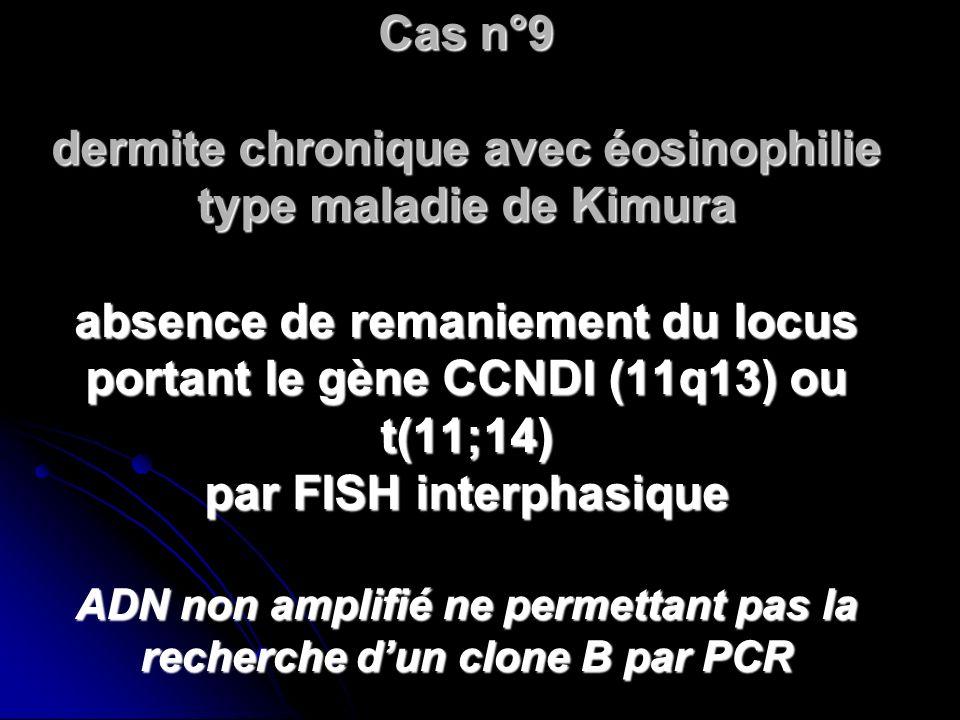 Cas n°9 dermite chronique avec éosinophilie type maladie de Kimura absence de remaniement du locus portant le gène CCNDI (11q13) ou t(11;14) par FISH