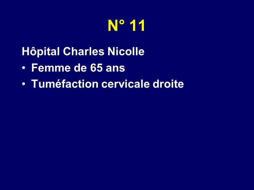 N° 11 Hôpital Charles Nicolle Femme de 65 ans Tuméfaction cervicale droite