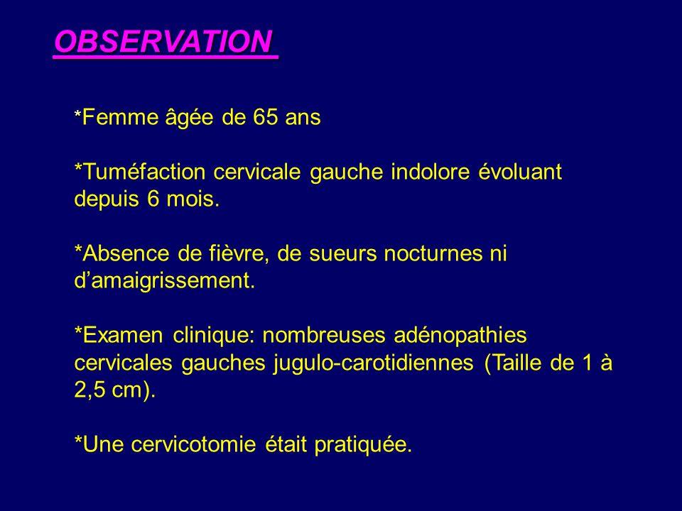 * * Femme âgée de 65 ans * *Tuméfaction cervicale gauche indolore évoluant depuis 6 mois. * *Absence de fièvre, de sueurs nocturnes ni damaigrissement