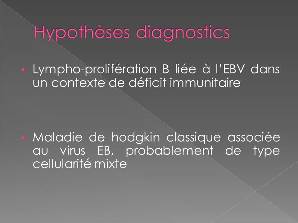 Lympho-prolifération B liée à lEBV dans un contexte de déficit immunitaire Maladie de hodgkin classique associée au virus EB, probablement de type cel