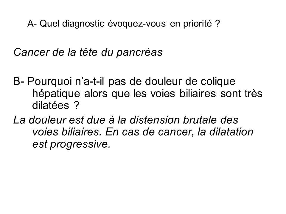 A- Quel diagnostic évoquez-vous en priorité ? Cancer de la tête du pancréas B- Pourquoi na-t-il pas de douleur de colique hépatique alors que les voie