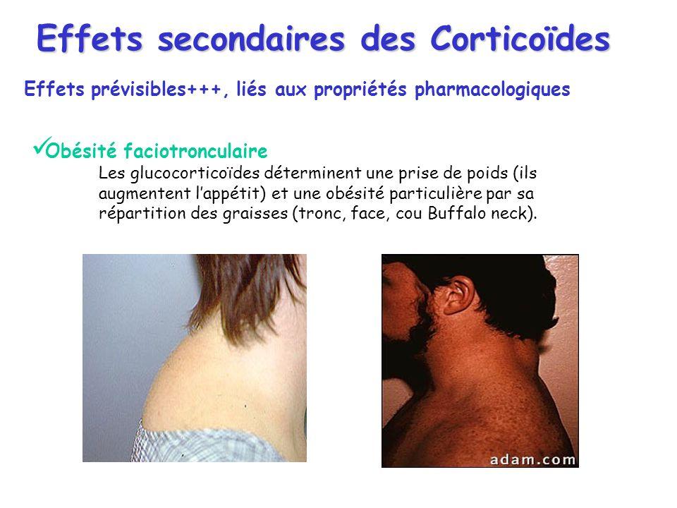 Effets secondaires des Corticoïdes Effets prévisibles+++, liés aux propriétés pharmacologiques Obésité faciotronculaire Les glucocorticoïdes détermine