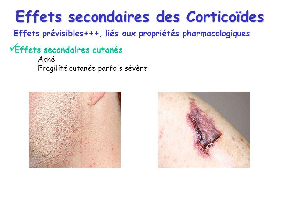 Effets secondaires cutanés Acné Fragilité cutanée parfois sévère Effets secondaires des Corticoïdes Effets prévisibles+++, liés aux propriétés pharmac