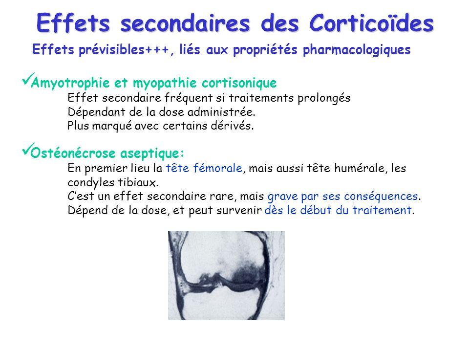 Effets secondaires des Corticoïdes Effets prévisibles+++, liés aux propriétés pharmacologiques Amyotrophie et myopathie cortisonique Effet secondaire