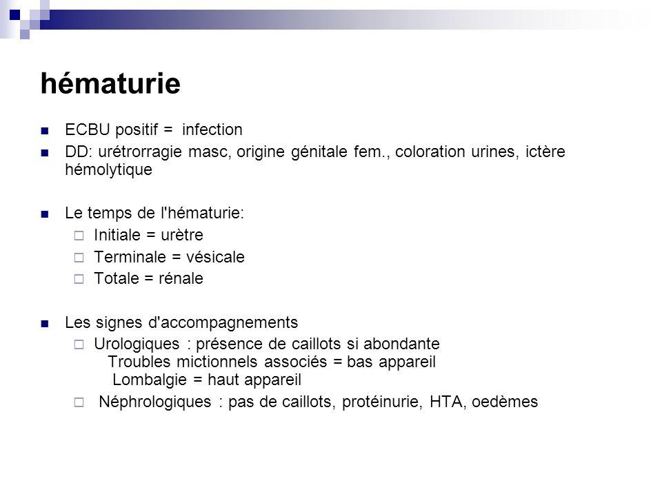 hématurie ECBU positif = infection DD: urétrorragie masc, origine génitale fem., coloration urines, ictère hémolytique Le temps de l'hématurie: Initia