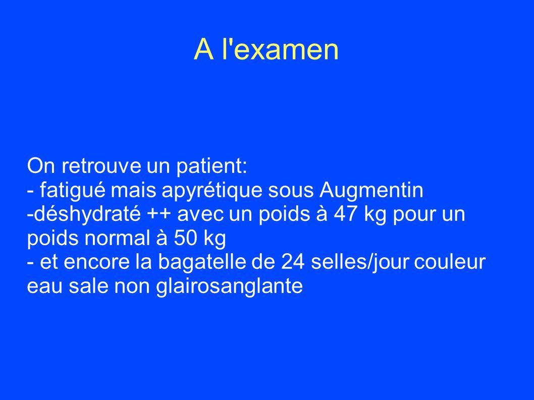 A l'examen On retrouve un patient: - fatigué mais apyrétique sous Augmentin -déshydraté ++ avec un poids à 47 kg pour un poids normal à 50 kg - et enc
