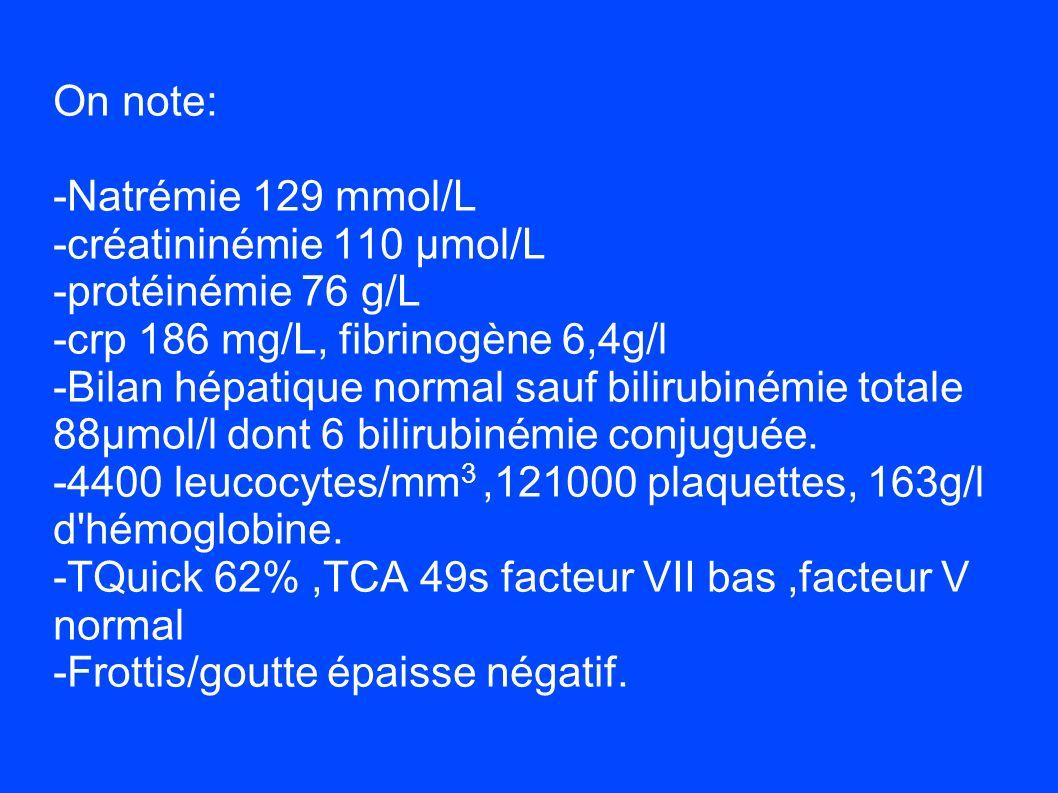 On note: -Natrémie 129 mmol/L -créatininémie 110 µmol/L -protéinémie 76 g/L -crp 186 mg/L, fibrinogène 6,4g/l -Bilan hépatique normal sauf bilirubiném