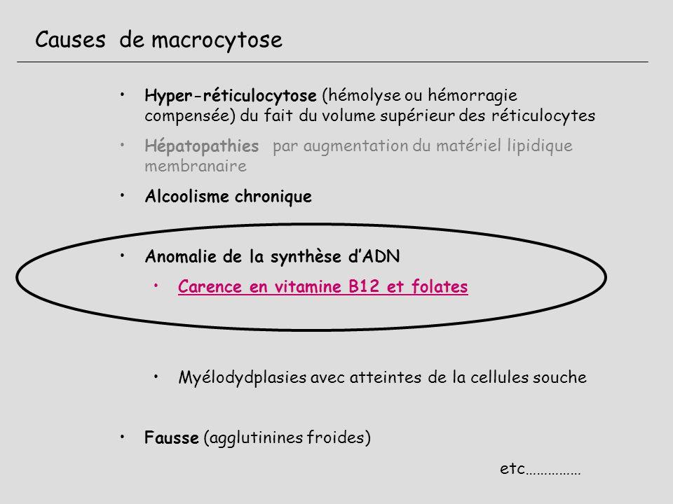 Causes de macrocytose Hyper-réticulocytose (hémolyse ou hémorragie compensée) du fait du volume supérieur des réticulocytes Hépatopathies par augmenta