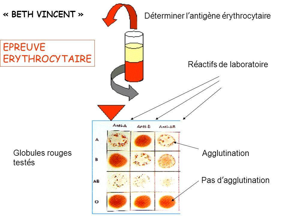 EPREUVE ERYTHROCYTAIRE « BETH VINCENT » D é terminer l antig è ne é rythrocytaire Agglutination Globules rouges test é s R é actifs de laboratoire Pas d agglutination