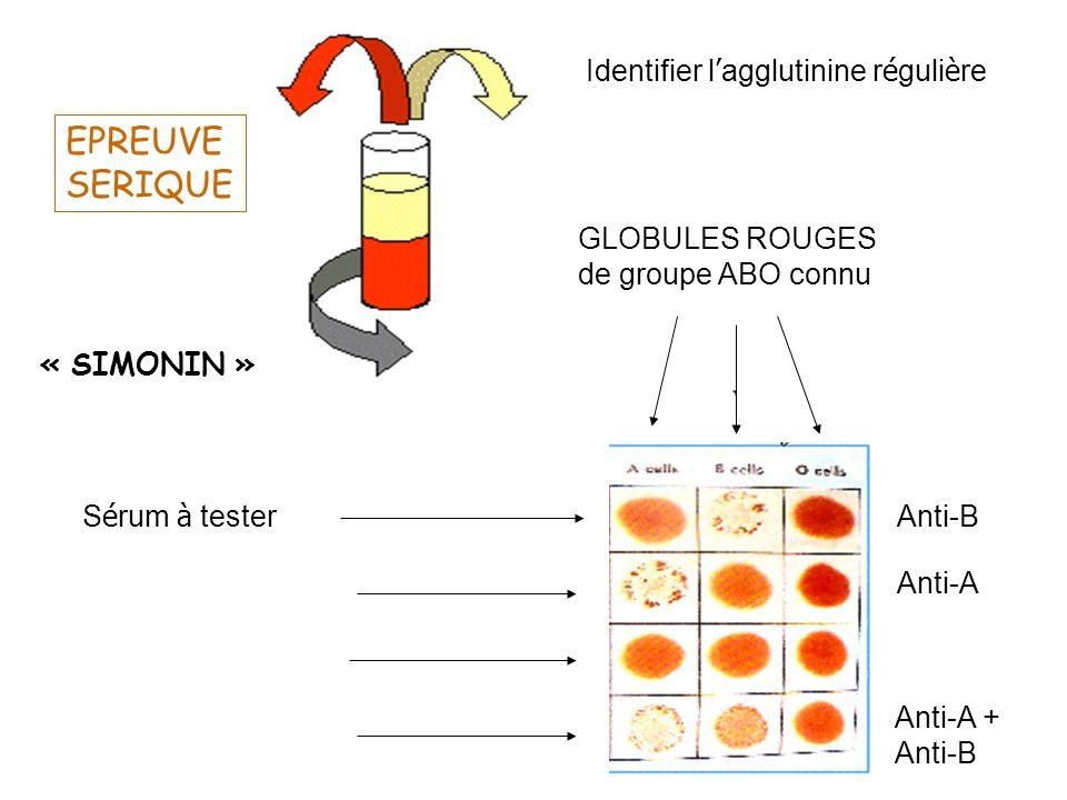 « SIMONIN » EPREUVE SERIQUE GLOBULES ROUGES de groupe ABO connu S é rum à tester Anti-B Anti-A Anti-A + Anti-B Identifier l agglutinine r é guli è re