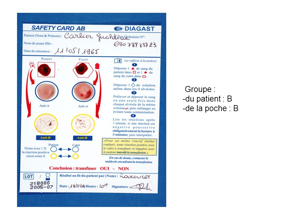 Groupe : -du patient : B -de la poche : B