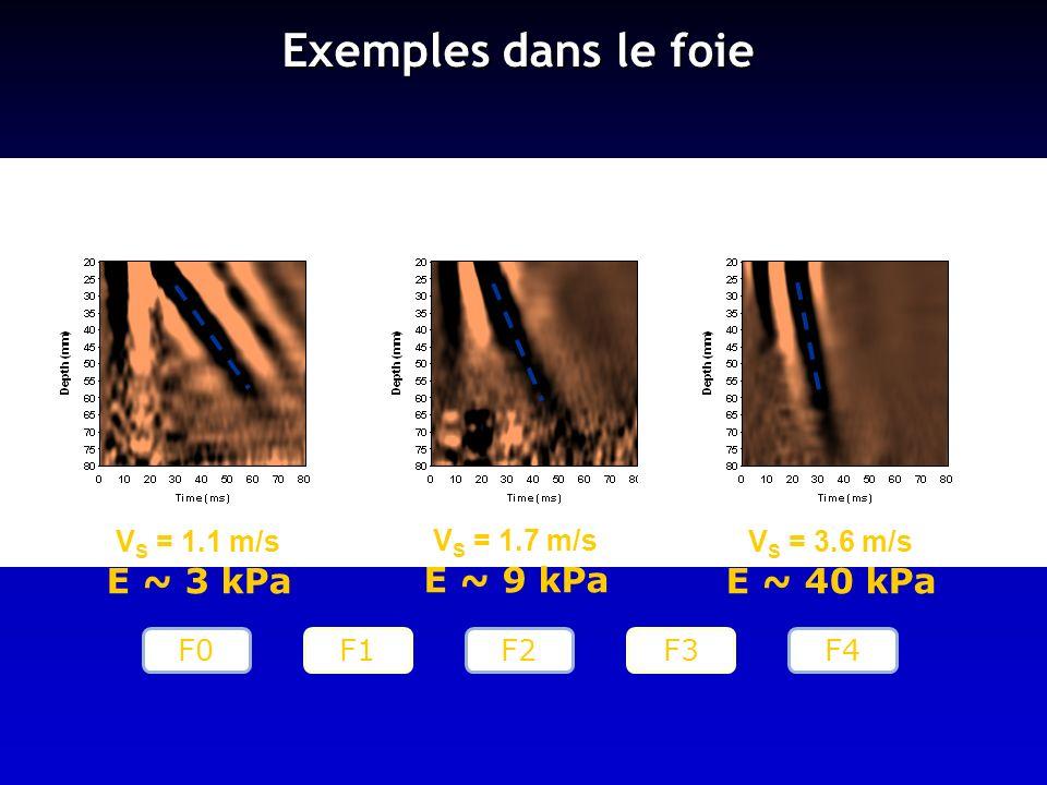 Exemples dans le foie V S = 1.1 m/s E ~ 3 kPa V S = 1.7 m/s E ~ 9 kPa V S = 3.6 m/s E ~ 40 kPa F0F2F4 F1 F3
