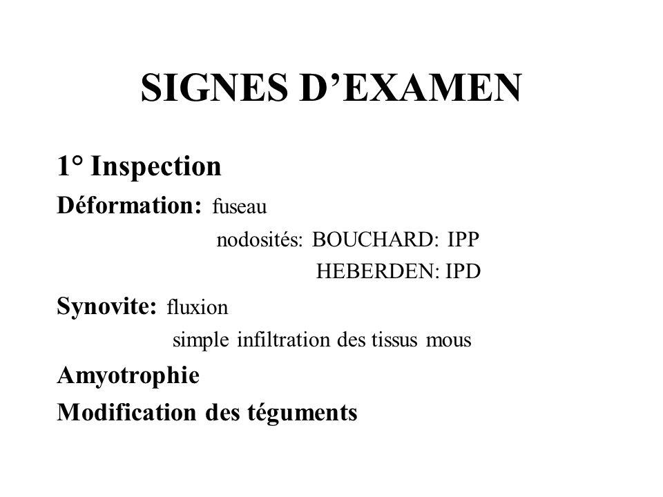 SIGNES DEXAMEN 1° Inspection Déformation: fuseau nodosités: BOUCHARD: IPP HEBERDEN: IPD Synovite: fluxion simple infiltration des tissus mous Amyotrop
