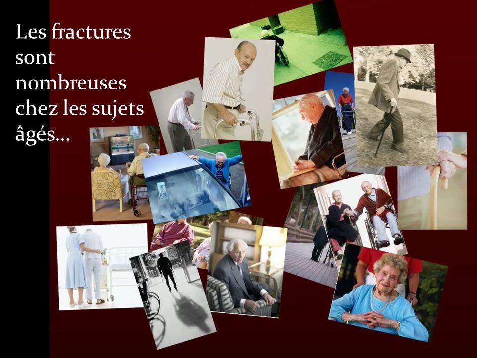 Les fractures sont nombreuses chez les sujets âgés…
