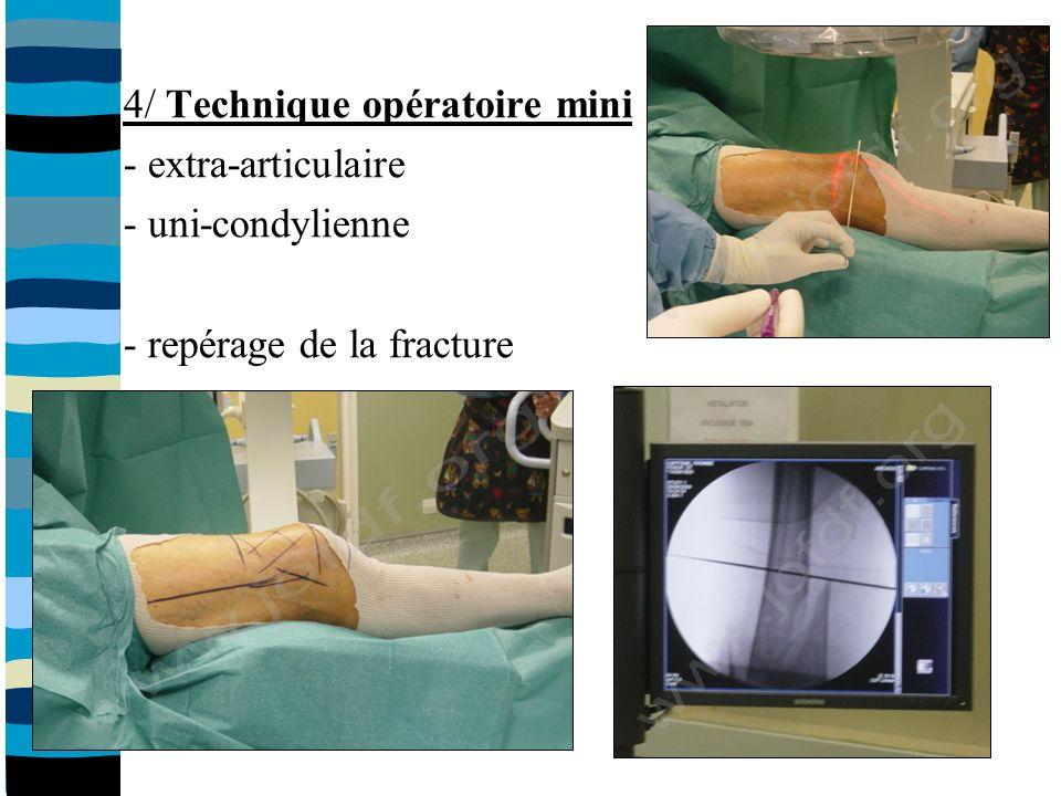 4/ Technique opératoire mini - extra-articulaire - uni-condylienne - repérage de la fracture