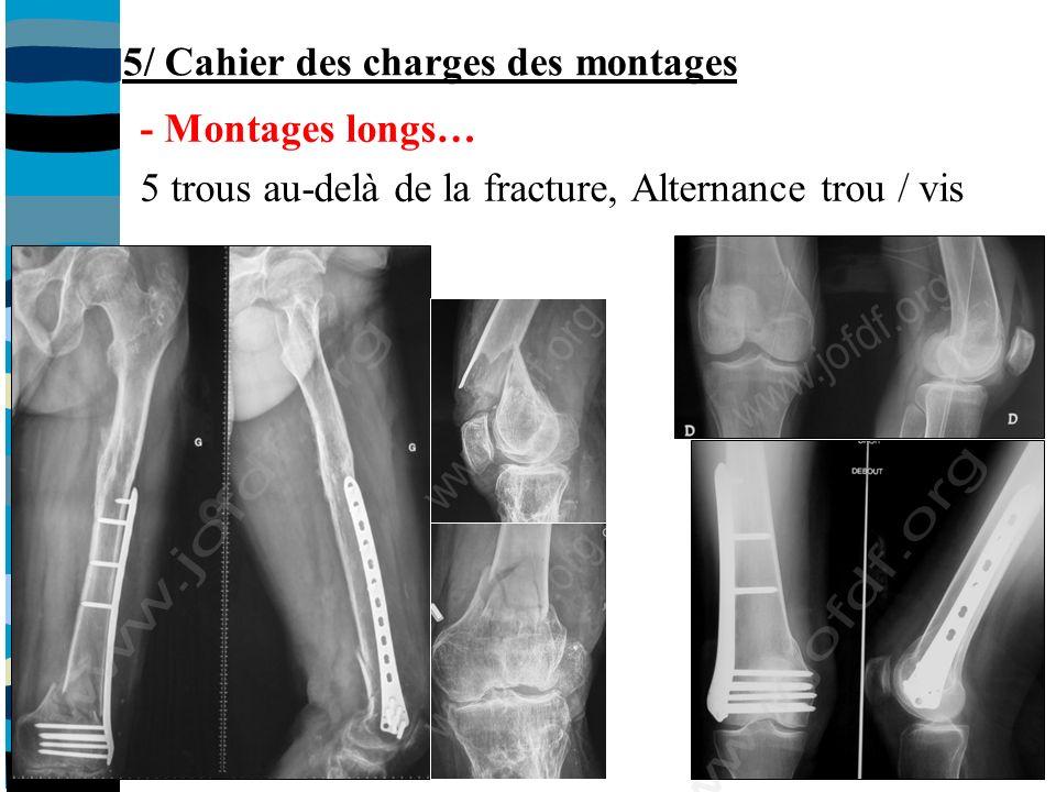 - Montages longs… 5 trous au-delà de la fracture, Alternance trou / vis 5/ Cahier des charges des montages
