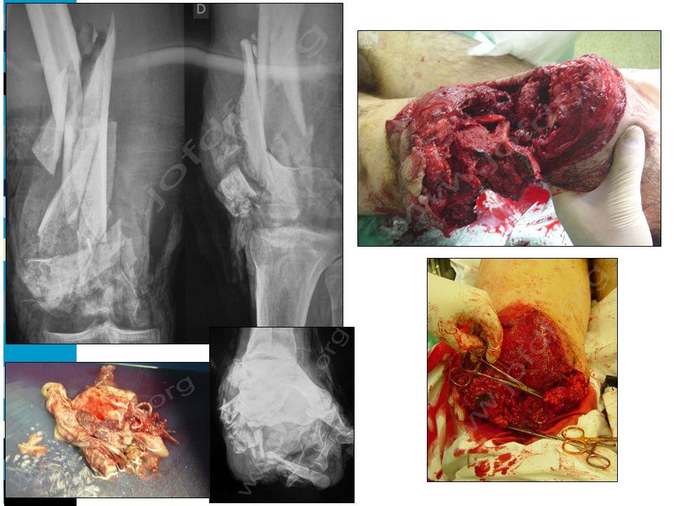 Nos résultats : - cliniques satisfaisants : - conservation de la mobilité articulaire - récupération du niveau dautonomie - mais existence de douleurs chroniques mécaniques - radiologiques satisfaisants : 5 défauts initiaux / 47 fractures Pas de modifications secondaire malgré remise en charge - mais… : 3 sepsis précoces (6%): chirurgie délicate 2 démontages précoces (4%) : biomécanique doit être connue