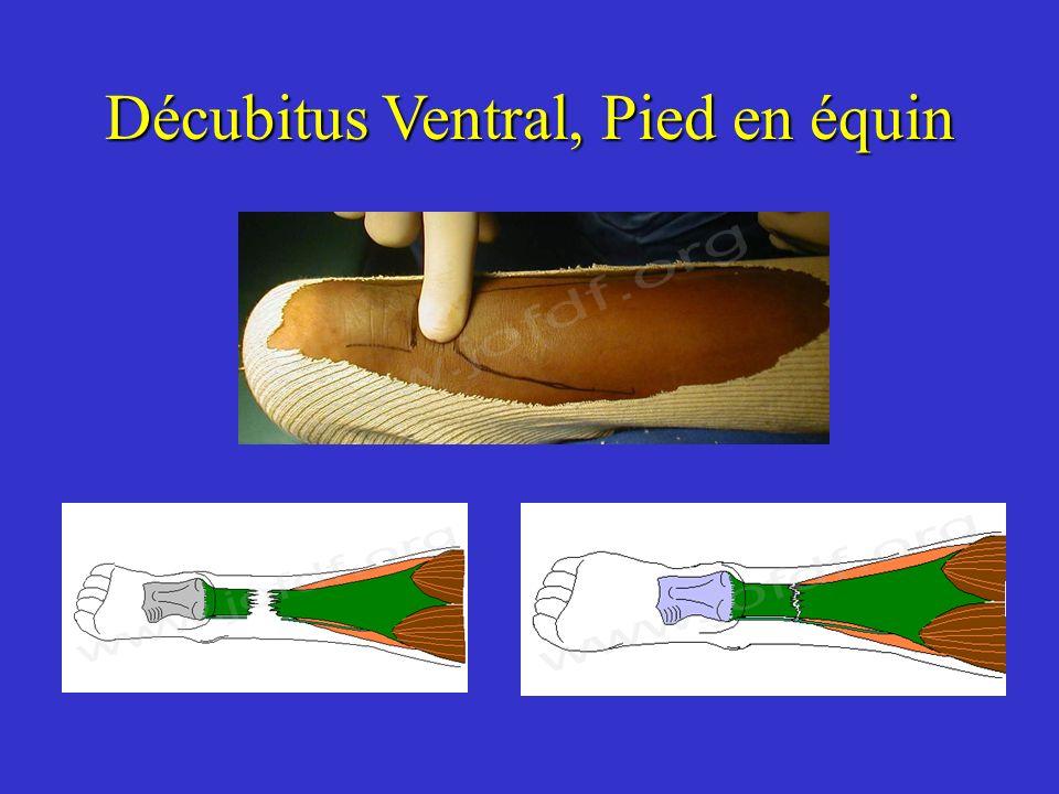 Décubitus Ventral, Pied en équin