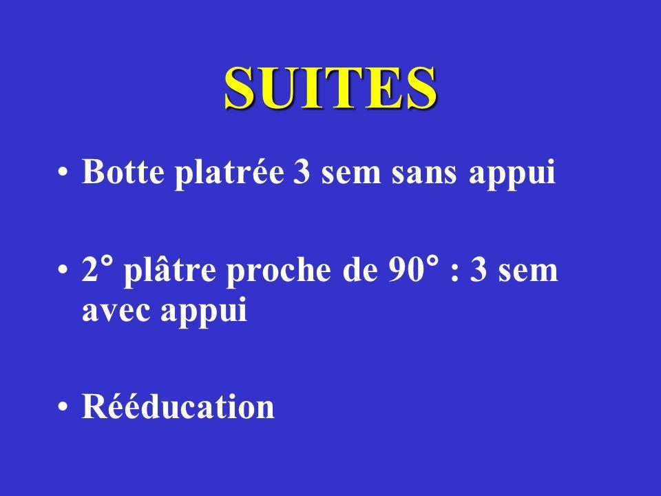 SUITES Botte platrée 3 sem sans appui 2° plâtre proche de 90° : 3 sem avec appui Rééducation