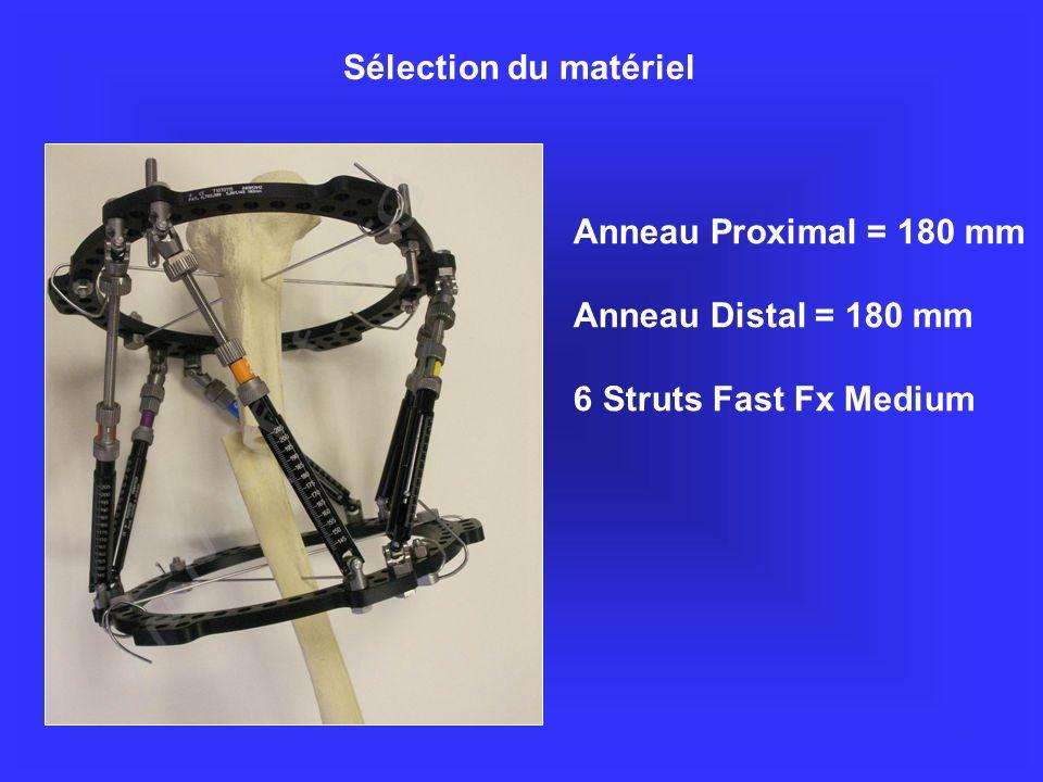 Sélection du matériel Anneau Proximal = 180 mm Anneau Distal = 180 mm 6 Struts Fast Fx Medium