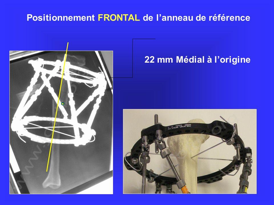 Positionnement FRONTAL de lanneau de référence 22 mm Médial à lorigine