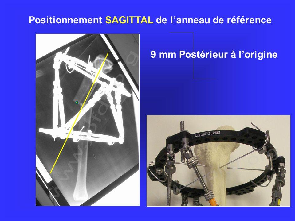 9 mm Postérieur à lorigine Positionnement SAGITTAL de lanneau de référence
