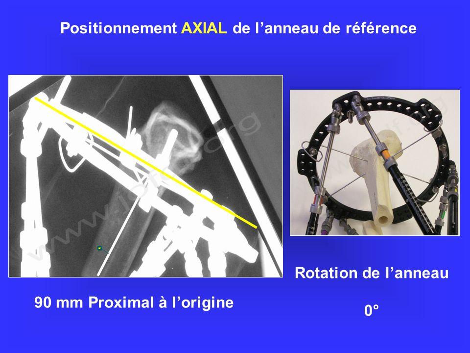 90 mm Proximal à lorigine Positionnement AXIAL de lanneau de référence Rotation de lanneau 0°