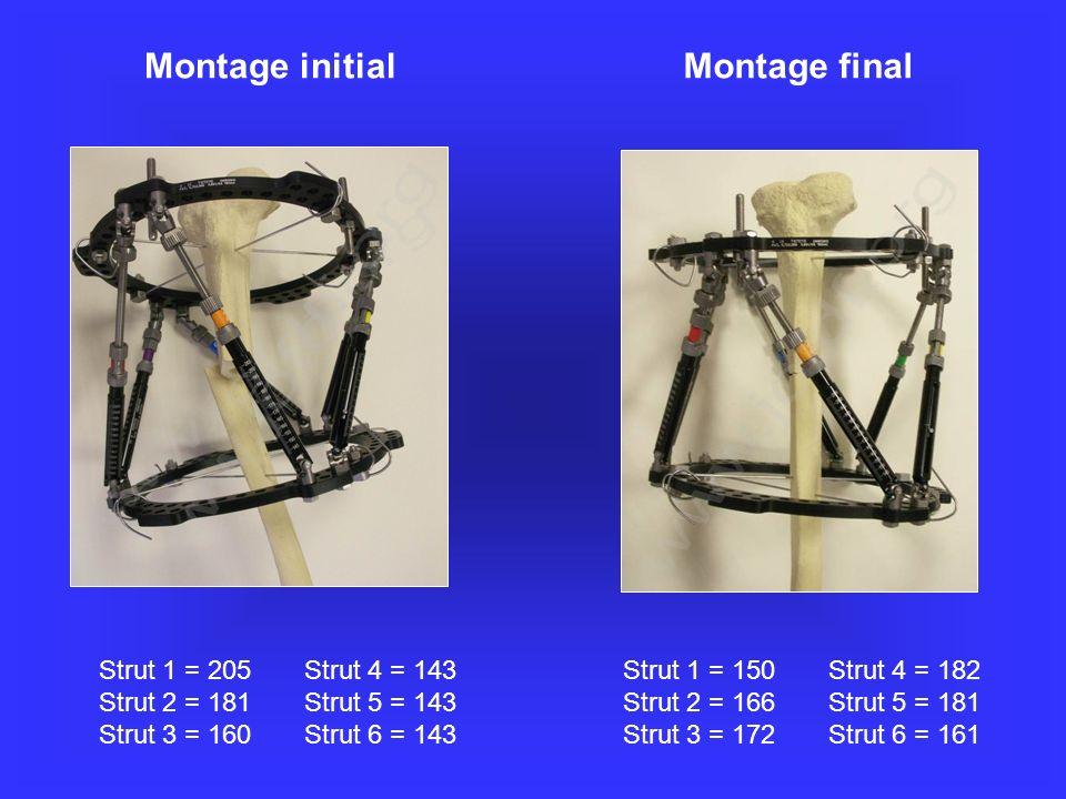 Montage initial Strut 1 = 205 Strut 4 = 143 Strut 2 = 181 Strut 5 = 143 Strut 3 = 160 Strut 6 = 143 Strut 1 = 150 Strut 4 = 182 Strut 2 = 166 Strut 5 = 181 Strut 3 = 172 Strut 6 = 161 Montage final