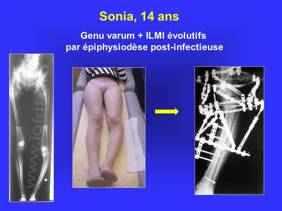 Sonia, 14 ans Genu varum + ILMI évolutifs par épiphysiodèse post-infectieuse