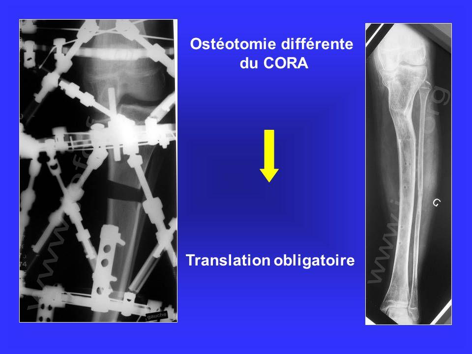Ostéotomie différente du CORA Translation obligatoire