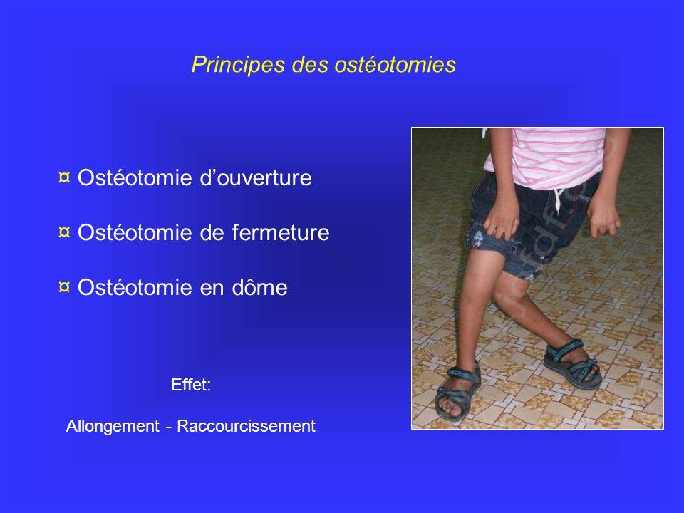 Principes des ostéotomies ¤ Ostéotomie douverture ¤ Ostéotomie de fermeture ¤ Ostéotomie en dôme Effet: Allongement - Raccourcissement