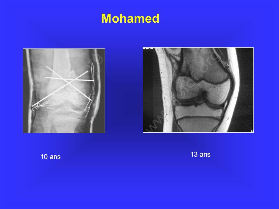 Mohamed 10 ans 13 ans