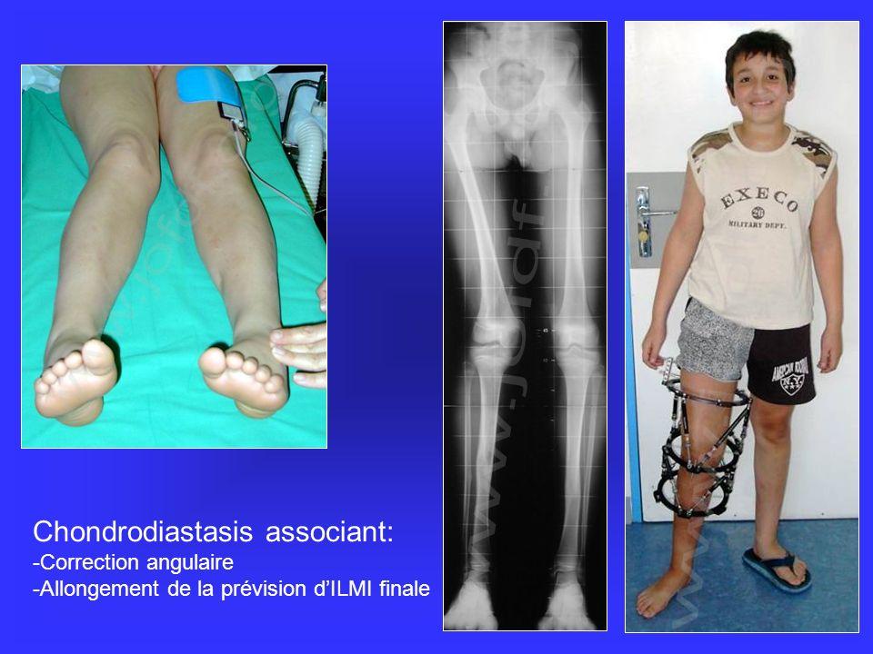 Chondrodiastasis associant: -Correction angulaire -Allongement de la prévision dILMI finale