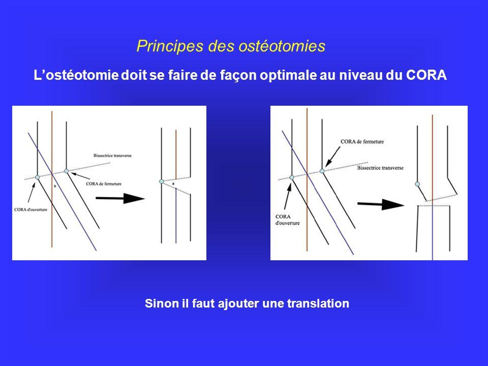 Lostéotomie doit se faire de façon optimale au niveau du CORA Principes des ostéotomies Sinon il faut ajouter une translation