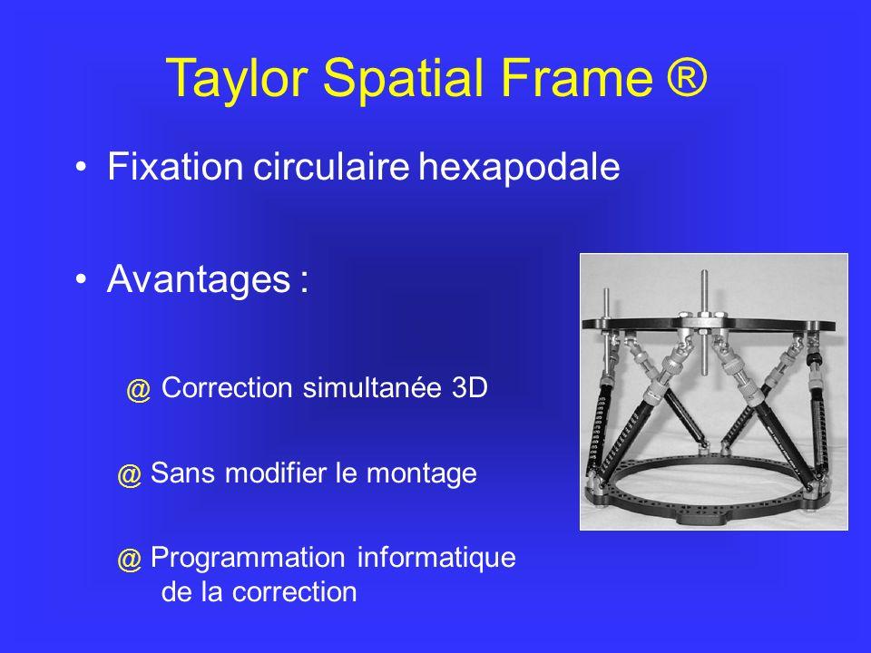 Taylor Spatial Frame ® Fixation circulaire hexapodale Avantages : @ Correction simultanée 3D @ Sans modifier le montage @ Programmation informatique de la correction