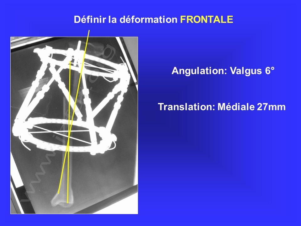 Angulation: Valgus 6° Translation: Médiale 27mm Définir la déformation FRONTALE