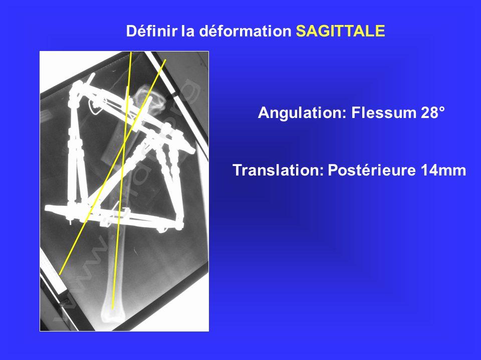 Rotation Interne 10° Définir la déformation AXIALE Raccourcissement 6mm