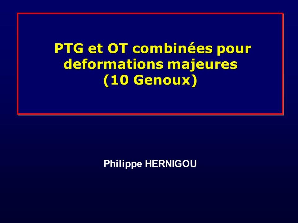 PTG et OT combinées pour deformations majeures (10 Genoux) PTG et OT combinées pour deformations majeures (10 Genoux) Philippe HERNIGOU