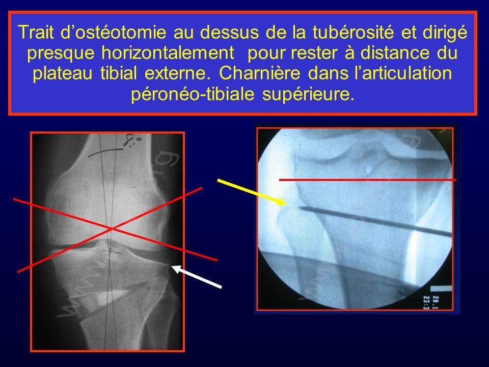 Trait dostéotomie au dessus de la tubérosité et dirigé presque horizontalement pour rester à distance du plateau tibial externe. Charnière dans lartic