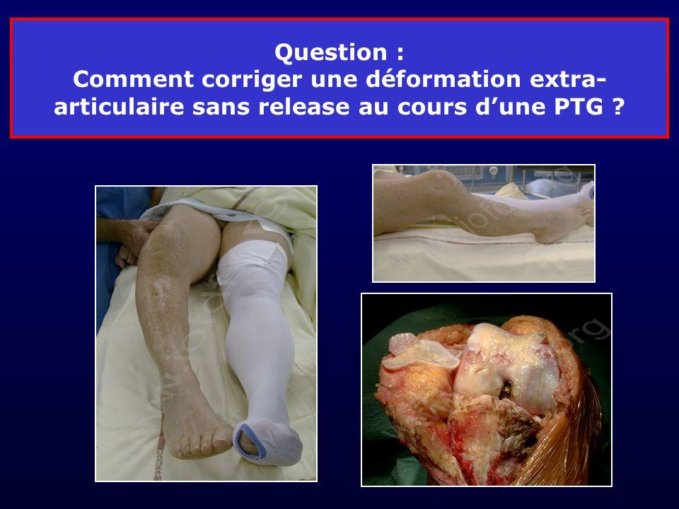 Question : Comment corriger une déformation extra- articulaire sans release au cours dune PTG ?