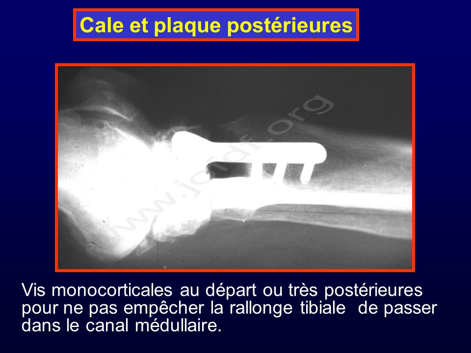 Cale et plaque postérieures Vis monocorticales au départ ou très postérieures pour ne pas empêcher la rallonge tibiale de passer dans le canal médullaire.