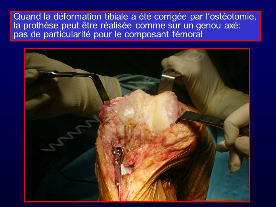Quand la déformation tibiale a été corrigée par lostéotomie, la prothèse peut être réalisée comme sur un genou axé: pas de particularité pour le composant fémoral