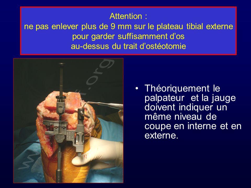 Attention : ne pas enlever plus de 9 mm sur le plateau tibial externe pour garder suffisamment dos au-dessus du trait dostéotomie Théoriquement le palpateur et la jauge doivent indiquer un même niveau de coupe en interne et en externe.