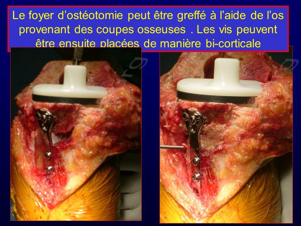 Le foyer dostéotomie peut être greffé à laide de los provenant des coupes osseuses. Les vis peuvent être ensuite placées de manière bi-corticale