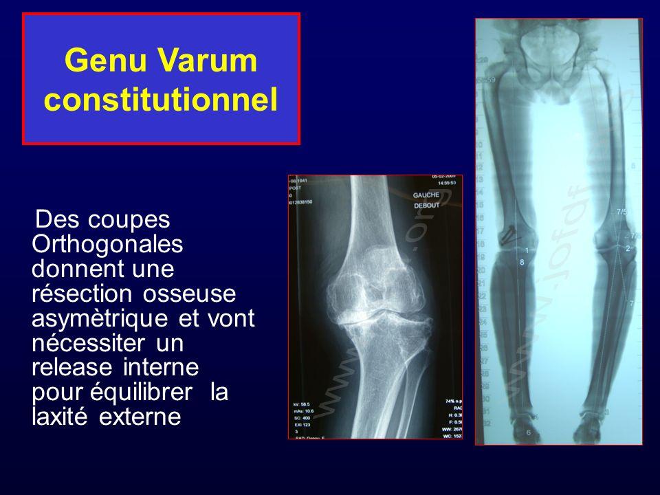 Genu Varum constitutionnel Des coupes Orthogonales donnent une résection osseuse asymètrique et vont nécessiter un release interne pour équilibrer la laxité externe