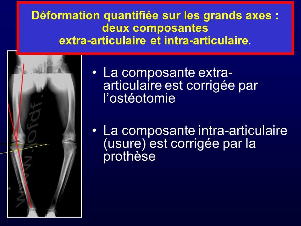 Déformation quantifiée sur les grands axes : deux composantes extra-articulaire et intra-articulaire. La composante extra- articulaire est corrigée pa