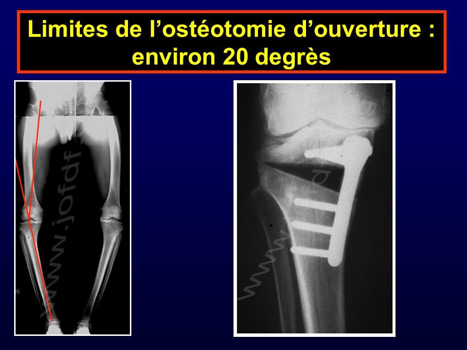 Limites de lostéotomie douverture : environ 20 degrès