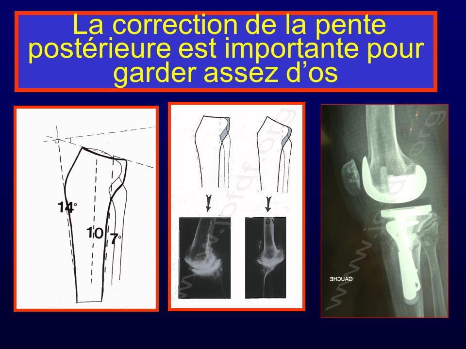 La correction de la pente postérieure est importante pour garder assez dos