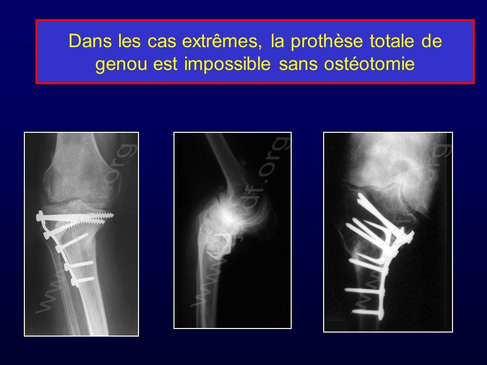 Dans les cas extrêmes, la prothèse totale de genou est impossible sans ostéotomie